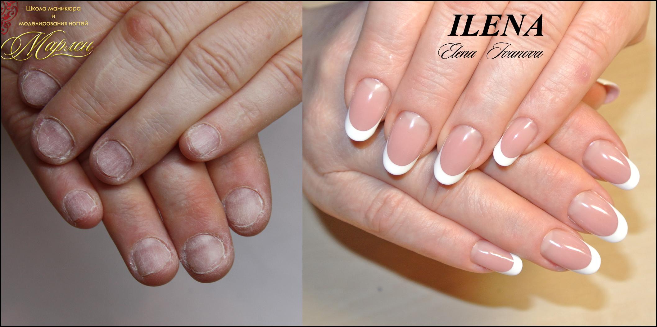Овальная форма ногтей короткие ногти